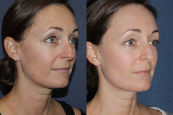 Before & After Fraxel Dual Treatment