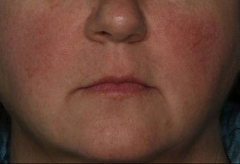 Female Treated for Rosacea/Photoaging