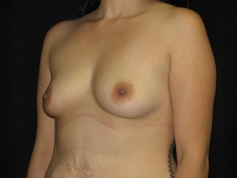 450 cc silicone gel breast implants
