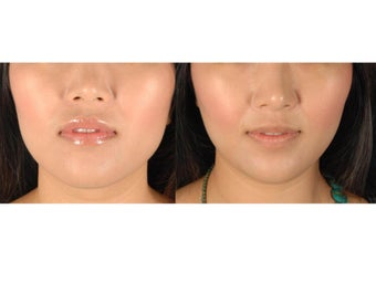 Botox Jawline Reduction