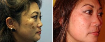 Treatment of Melasma