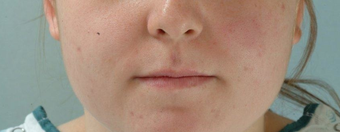 Microfat Lip Injections