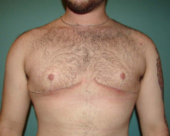 "FTM ""Top Surgery"" for chest masculinization"
