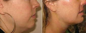 Neck Liposuction and Chin Implant