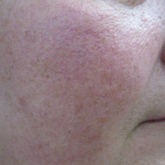 64 year old male with facial veins / telangiectasia