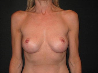 Breast Implant Removal with Mastopexies