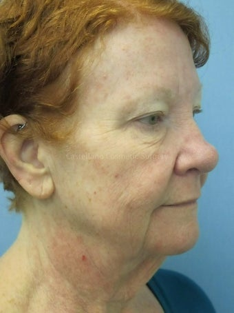 Face skin rejuvenation, woman, spot removal