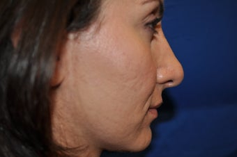 Female Patient Received Rhinoplasty to Remove Bump on Nasal Bridge