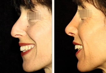 "42 year-old female with a nose she feels is ""too big"" in proportion to the rest of her facial features."