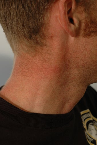 Neck Tattoo Removal -Laser Treatment