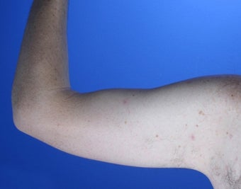 36 year old male weight loss patient with arm laxity