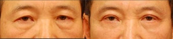 Male Upper and Lower Eyelid Surgery