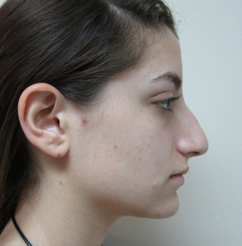 19 Year Old Treated for Aesthetic Nasal Deformity