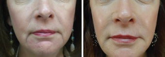 61 Year Old Female with facial fillers, skin care, and Botox