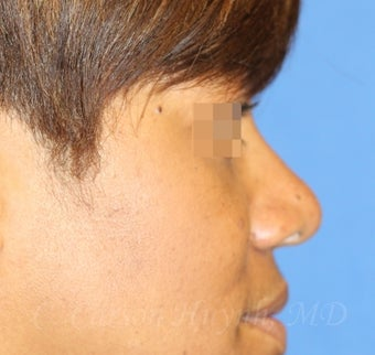 Young woman with bulbous nose treated with rhinoplasty
