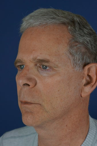 60 year male with liquid facelift