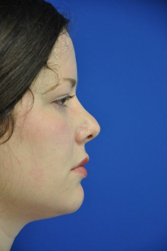 secondary rhinoplasty/revision rhinoplasty