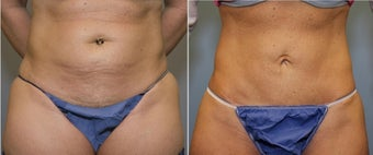 43 year old female with mini tummy tuck