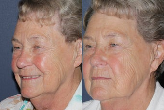 Before & After IPL Photo Facial