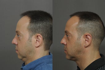 Chin Implant and Neck Tightening