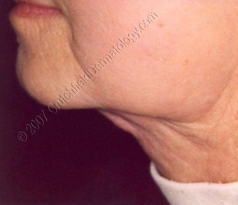 LipoDissolve injections to neck fat