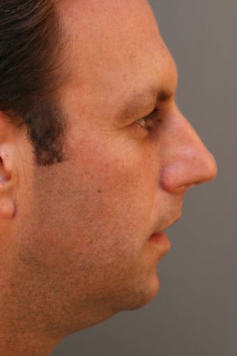 Male Chin Implant