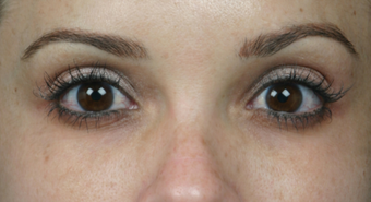 Latisse for Eyelashes