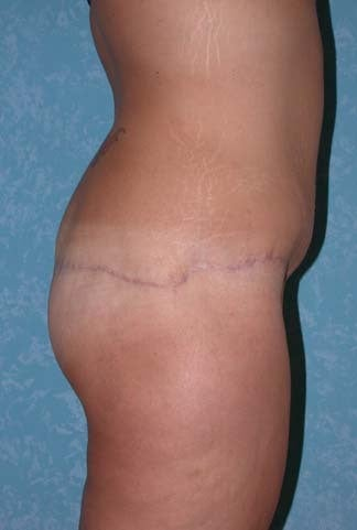 Buttock Augmentation with Circumferential Body Lift