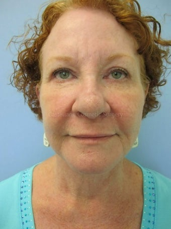 Woman, facelift and BOTOX procedure