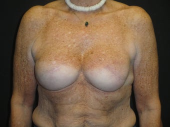 Implant-based breast reconstruction
