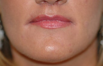 Before and After Lip Lift