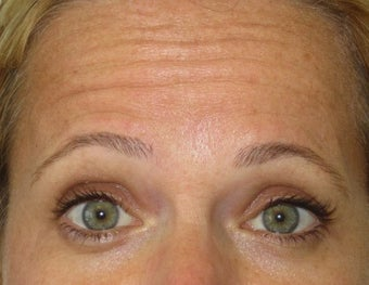 42 year old treated for forehead rhytids (wrinkles)