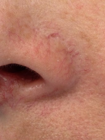 Laser treatment of nose veins and superficial spider veins