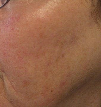 67 year old female with unwanted pigmentary changes on face
