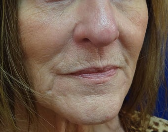 Juvederm Ultra Plus filler