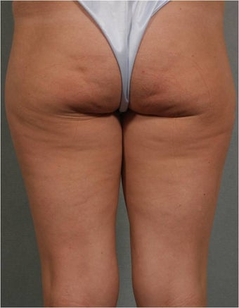 41 year old female treated for Cellulite on the back of her legs and bottocks using Cellulaze technologiy