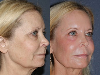 58 year old female treated with Ultra Repair Laser Resurfacing