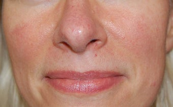Laser treatment for facial veins and redness