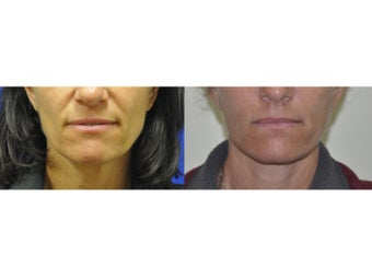 Lower Facelift/Necklift and Fat Transfer