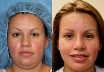 Rhinoplasty, neck liposuction, chin augmentation