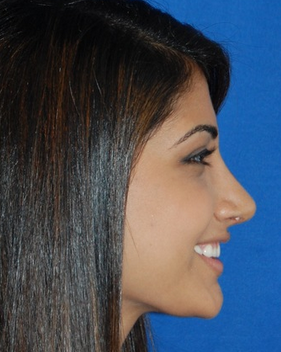 Teenage Rhinoplasty Before and Afters