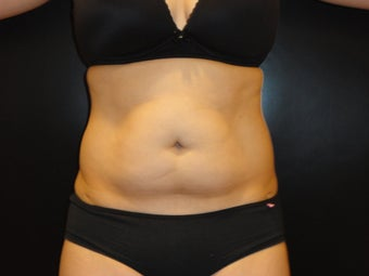 "Hi-definition sculplting with Smartlipo and  ""PRO-Sculpt"" Formula"