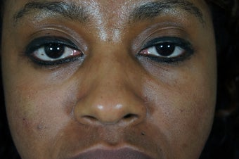 27 year old treated with filler to improve the bags underneath her eyes