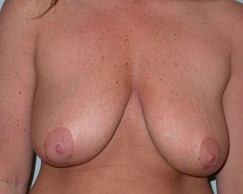 Breast Lift Procedure for 38 Year Old Woman