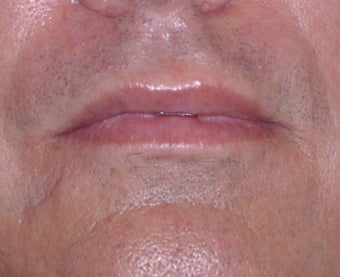 35 Year Old Male Who Desired Larger Lips