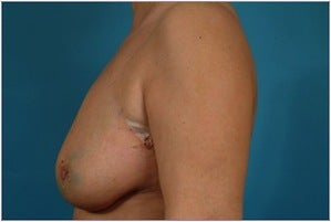 Breast reconstruction - Flap-based