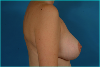 Flap-based breast reconstruction - LDMF