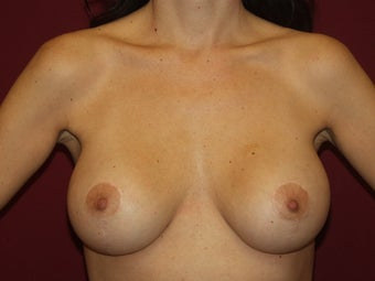 Lift with Breast Implants
