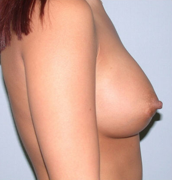 Breast Implant Patient