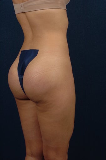 20 Year Old Female - Gluteal Augmentation